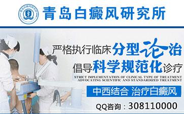 青岛初期白癜风发病的特点