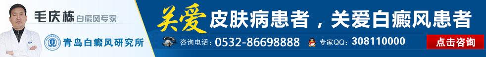 青岛白癜风研究所在线咨询